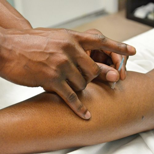 Arthritis » Wang Medical, Inc. | Acupuncture in Boise, ID